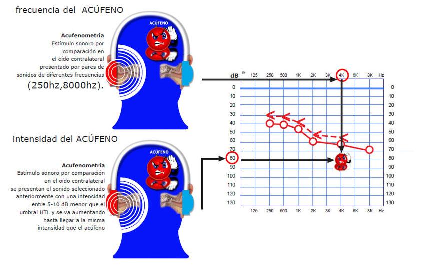 Cómo se realiza una acufenometría