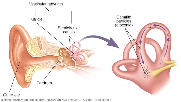 In cases of BPPV, or Benign Paroxysmal Positional Vertigo, small calcium crystals (canalith particles or otoconia) migrate into the fluid.