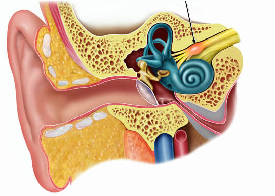 neuritis-vestibular